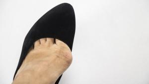 Babet Ayakkabıları Sürekli Kullanmayın